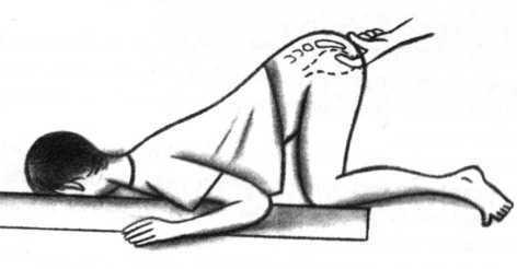 La dorsalgie et le pyrosis
